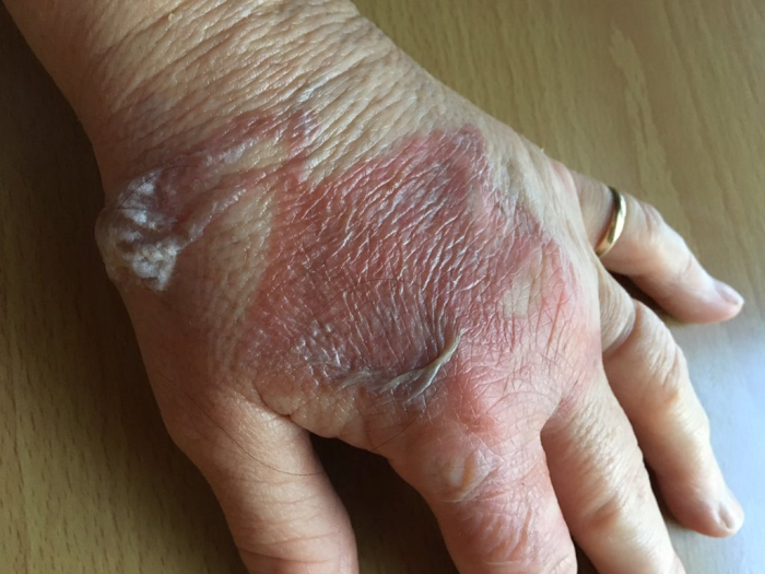 Burned Hand from Bacon Grease